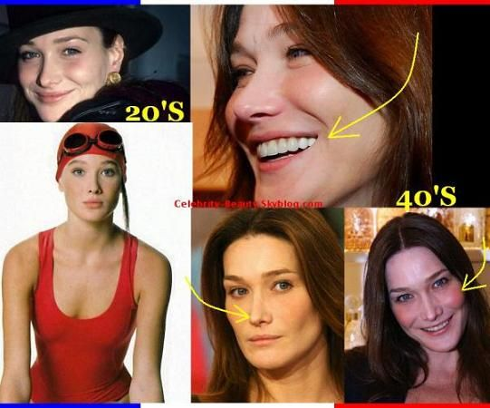 Carla_Bruni_Plastic_Surgery