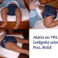 Alexis(woodie) en te1 integrale ultrafine
