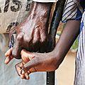 Afrique du sud: une adolescente sur 4 d'âge scolaire est positive au vih