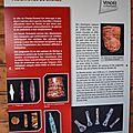 Réoccupations du néolithique final à l'âge du bronze, champ durand - département vendée