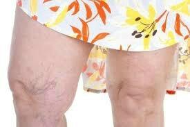 Comment en finir avec les jambes lourdes ? DU MARABOUT VOYANT BABA VIGAN TROM