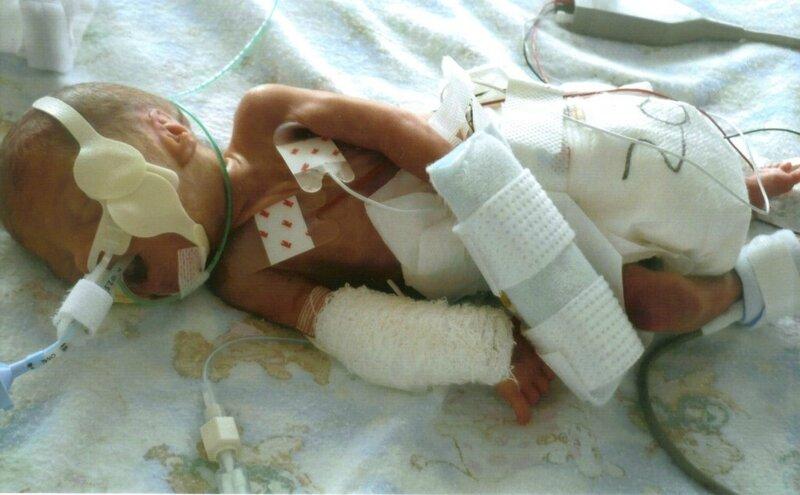 breast-feeding-premature-babies-253693-1024x634