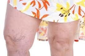 Finir avec les jambes lourdes grace au medium maitre marabout ABOU