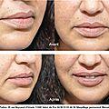 Maquillage permanent contour des lèvres réalisé par vanessa
