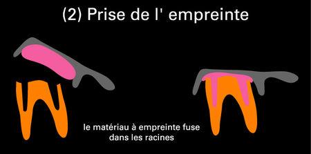 prise_de__l_empreinte