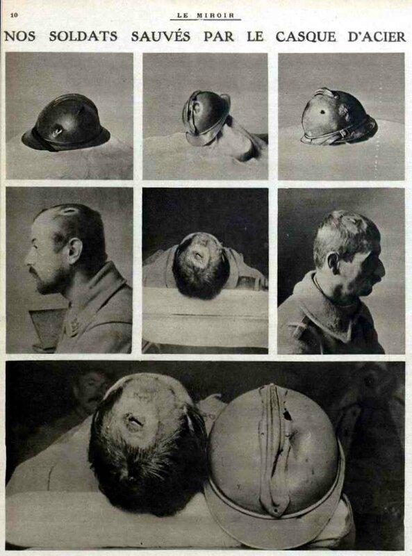 blessures casque2