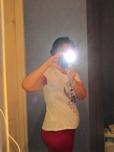 Abdominoplastie_Mars2011_019