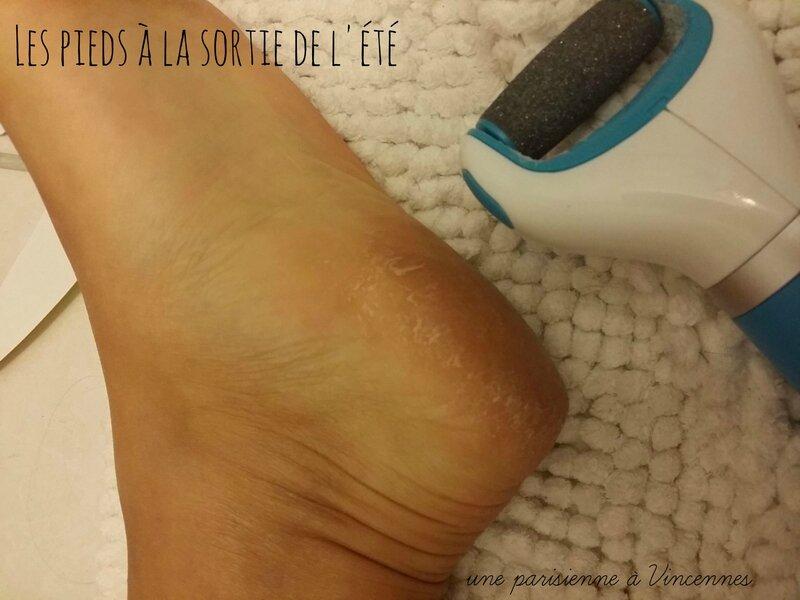 corne-pieds