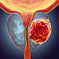 Traitement de cancer de la prostate