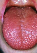 m2600013_dry_tongue_in_sjogren_s_syndrome_science_photo_libr