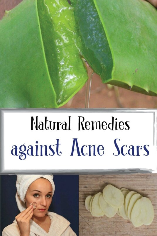 Natural-Remedies-against-Acne-Scars1